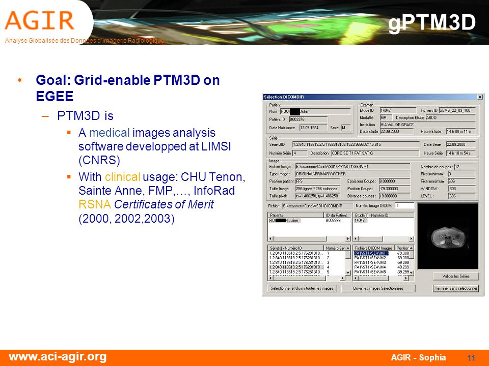 Analyse Globalisée des Données dImagerie Radiologique www.aci-agir.org AGIR - Sophia 11 gPTM3D Goal: Grid-enable PTM3D on EGEE –PTM3D is A medical images analysis software developped at LIMSI (CNRS) With clinical usage: CHU Tenon, Sainte Anne, FMP,…, InfoRad RSNA Certificates of Merit (2000, 2002,2003)