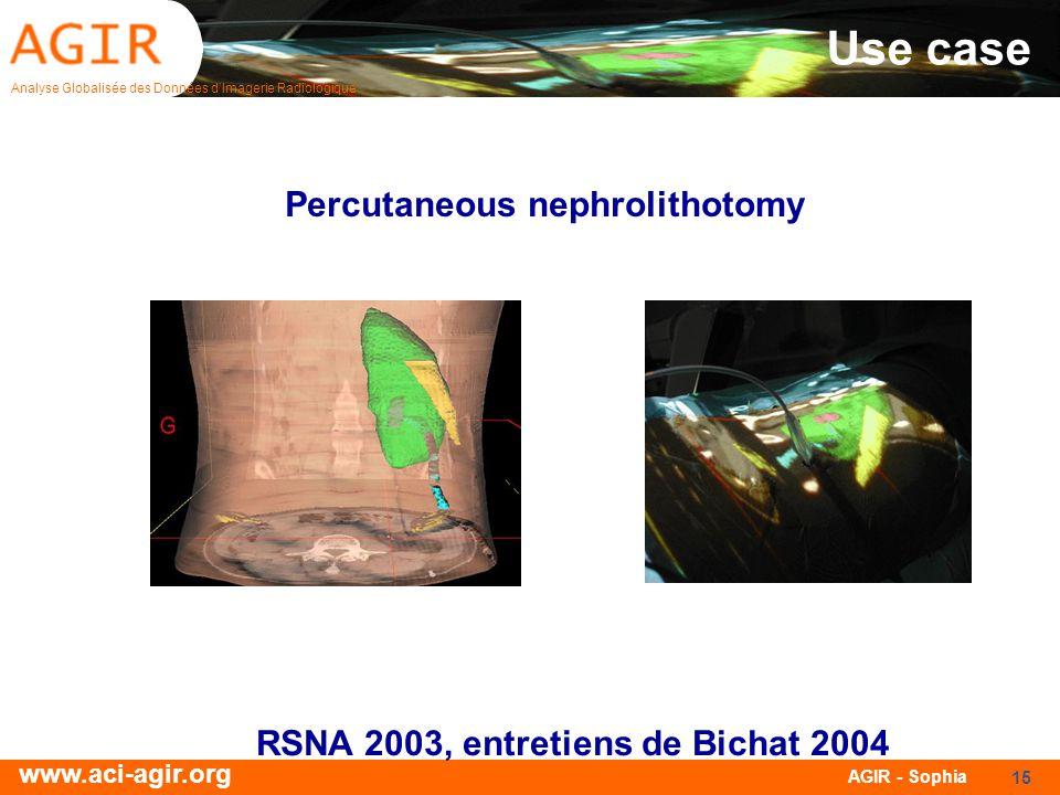 Analyse Globalisée des Données dImagerie Radiologique www.aci-agir.org AGIR - Sophia 15 Use case Percutaneous nephrolithotomy RSNA 2003, entretiens de Bichat 2004