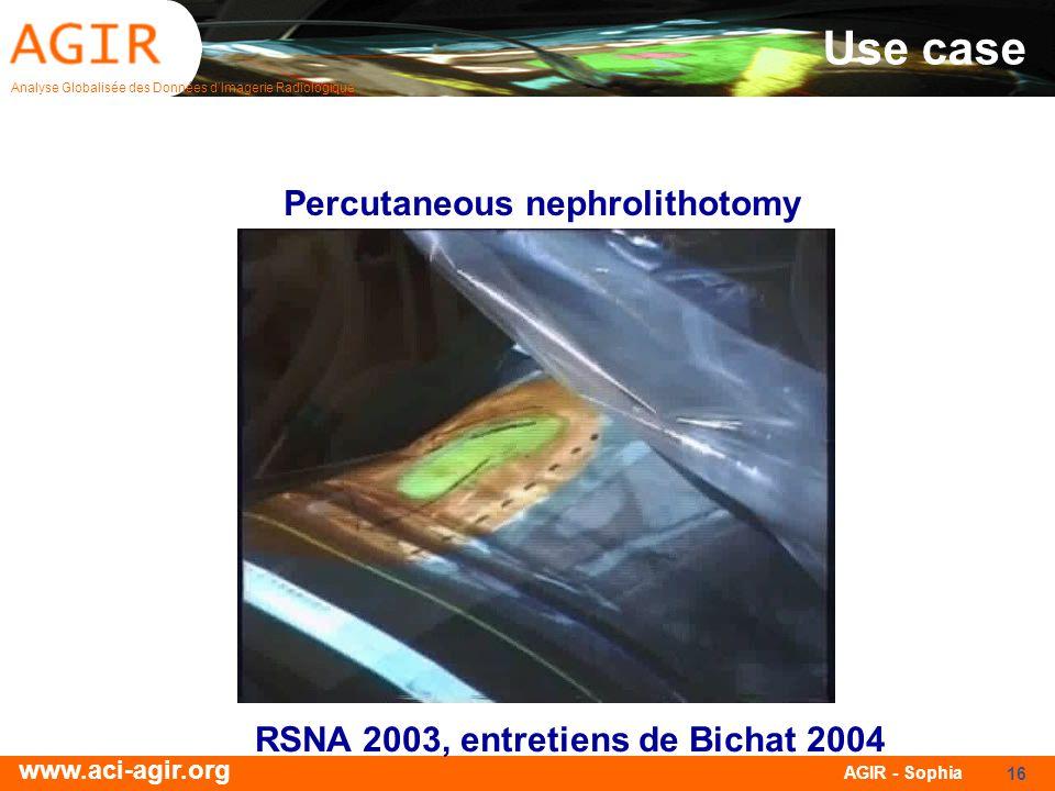 Analyse Globalisée des Données dImagerie Radiologique www.aci-agir.org AGIR - Sophia 16 Use case Percutaneous nephrolithotomy RSNA 2003, entretiens de Bichat 2004
