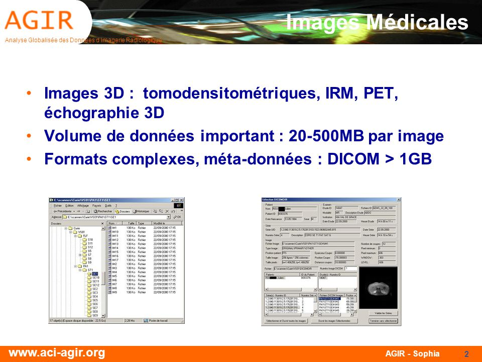 Analyse Globalisée des Données dImagerie Radiologique www.aci-agir.org AGIR - Sophia 2 Images Médicales Images 3D : tomodensitométriques, IRM, PET, échographie 3D Volume de données important : 20-500MB par image Formats complexes, méta-données : DICOM > 1GB
