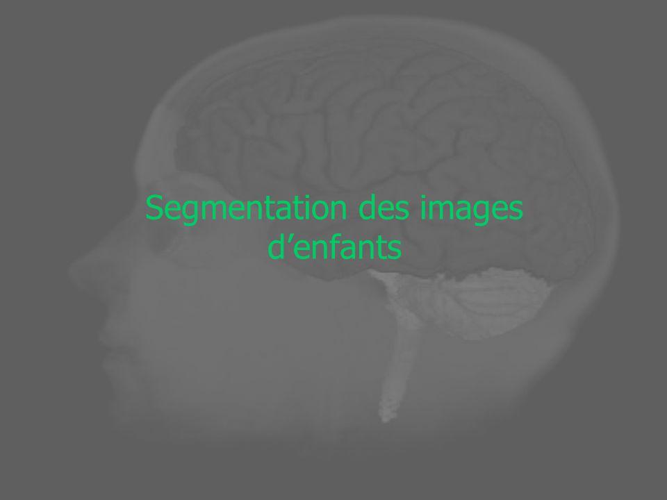 Morphologie Mathématique Image discrète (f) : ensemble des points sur un maillage Z 3 Image discrète f : Z 3 Y ( N, {0, 1}) Élément structurant : X P (X) (tous les sous-ensembles de X) dénote une boule centrée à lorigine Dilatation binaire Érosion binaire (complémentaire à ) : ix i xxfxf)()( i x i xxfxf)()(