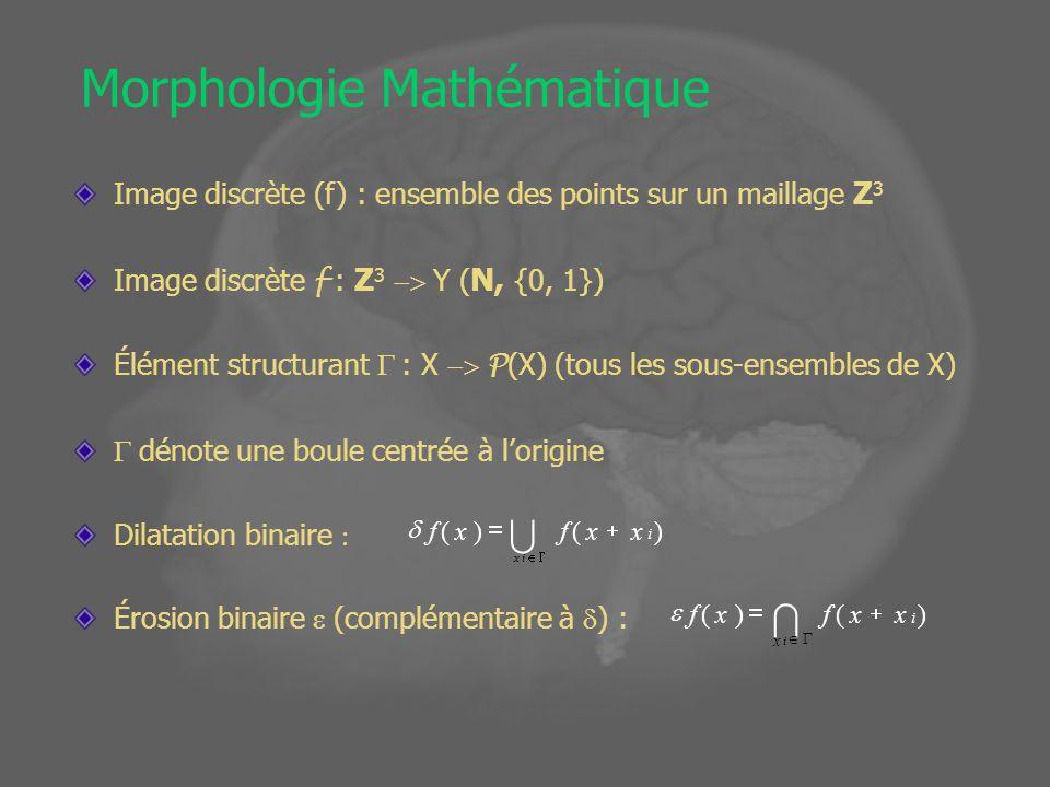 Exemple: Extraction du cerveau 1.Seuillage X 1 ={x, s 1 < f (x)<s 2 } 2.Érosion X 2 = X 1 3.Sélection de la plus grande composante Connexe 4.Reconstruction 5.Remplissage des cavités coupe par coupe s 1 = cortex - cortex /2 s 2 = graisse - graisse K-moyennes