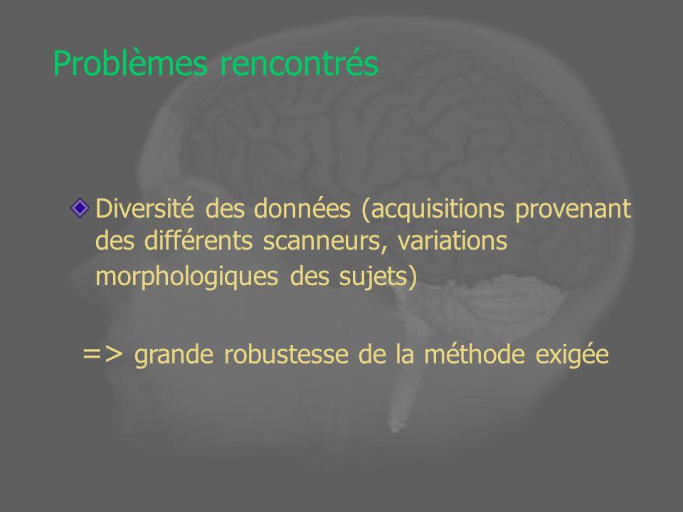 Problèmes rencontrés Diversité des données (acquisitions provenant des différents scanneurs, variations morphologiques des sujets) => grande robustesse de la méthode exigée