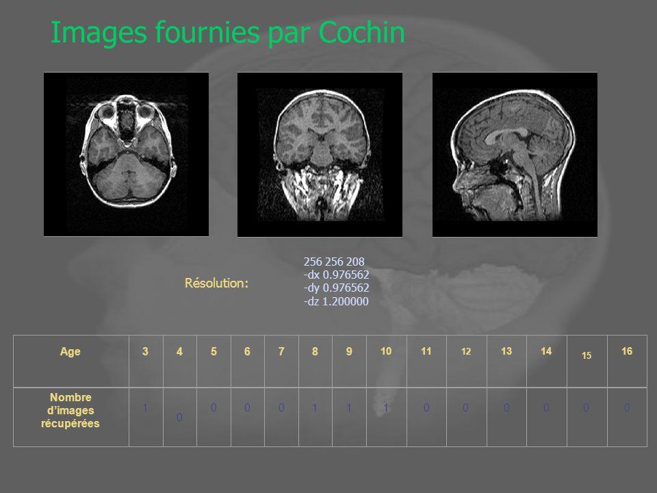 Images fournies par Cochin 256 256 208 -dx 0.976562 -dy 0.976562 -dz 1.200000 Résolution: Age3456789 1011 12 1314 15 16 Nombre dimages récupérées 1 0 000111000000
