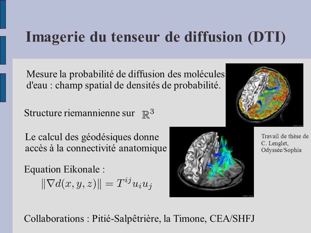 Imagerie du tenseur de diffusion (DTI) Mesure la probabilité de diffusion des molécules d eau : champ spatial de densités de probabilité.