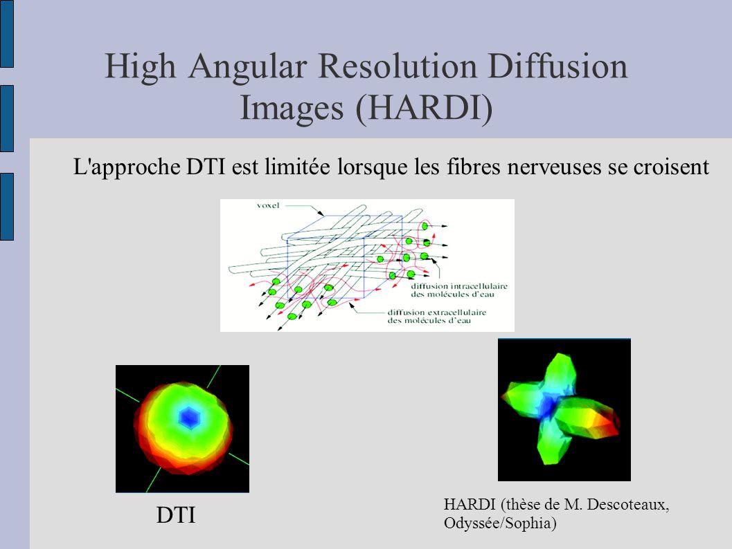 High Angular Resolution Diffusion Images (HARDI) L'approche DTI est limitée lorsque les fibres nerveuses se croisent DTI HARDI (thèse de M. Descoteaux
