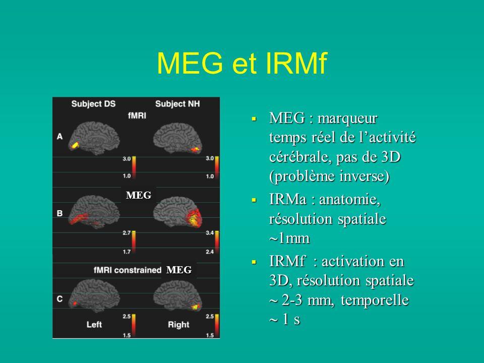 MEG et IRMf MEG : marqueur temps réel de lactivité cérébrale, pas de 3D (problème inverse) MEG : marqueur temps réel de lactivité cérébrale, pas de 3D (problème inverse) IRMa : anatomie, résolution spatiale 1mm IRMa : anatomie, résolution spatiale 1mm IRMf : activation en 3D, résolution spatiale 2-3 mm, temporelle 1 s IRMf : activation en 3D, résolution spatiale 2-3 mm, temporelle 1 s MEG MEG