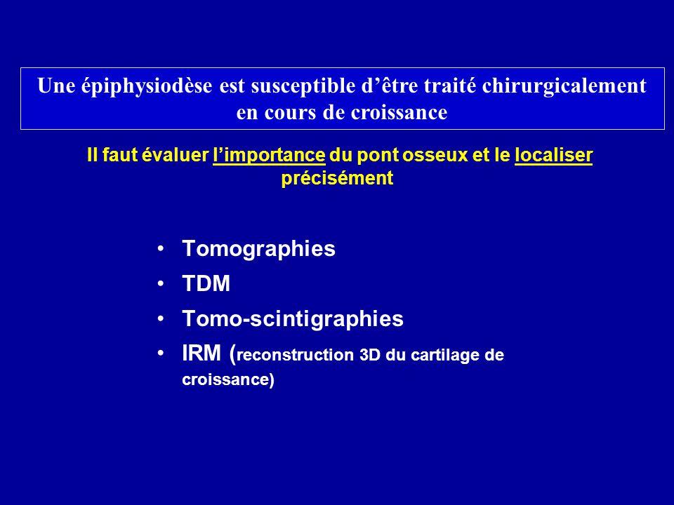 Il faut évaluer limportance du pont osseux et le localiser précisément Tomographies TDM Tomo-scintigraphies IRM ( reconstruction 3D du cartilage de cr