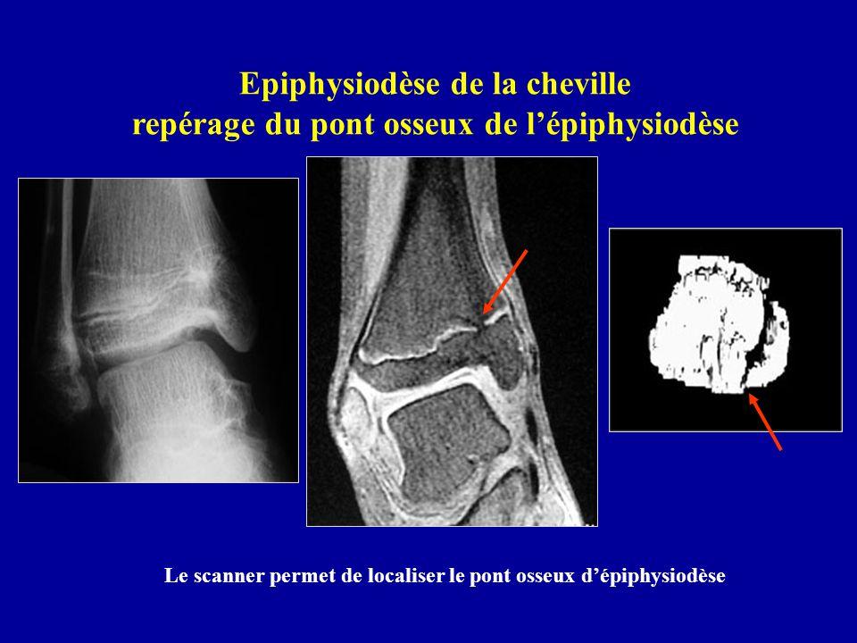 Epiphysiodèse de la cheville repérage du pont osseux de lépiphysiodèse Le scanner permet de localiser le pont osseux dépiphysiodèse