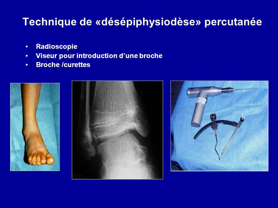 Technique de «désépiphysiodèse» percutanée Radioscopie Viseur pour introduction dune broche Broche /curettes