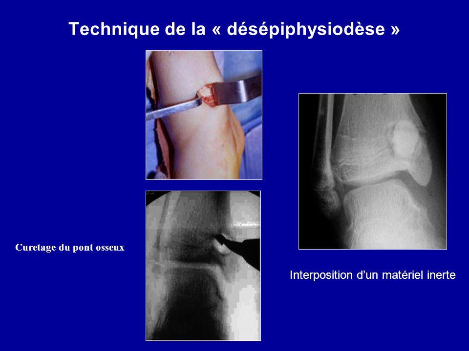 Technique de la « désépiphysiodèse » Interposition dun matériel inerte Curetage du pont osseux