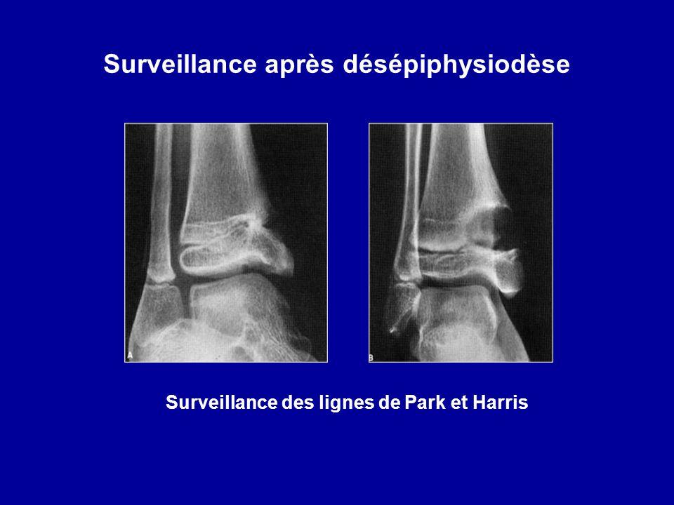 Surveillance après désépiphysiodèse Surveillance des lignes de Park et Harris