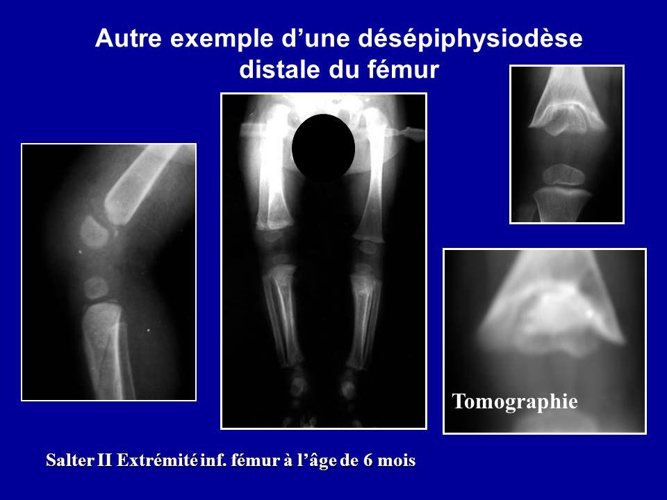 Autre exemple dune désépiphysiodèse distale du fémur Tomographie Salter II Extrémité inf. fémur à lâge de 6 mois