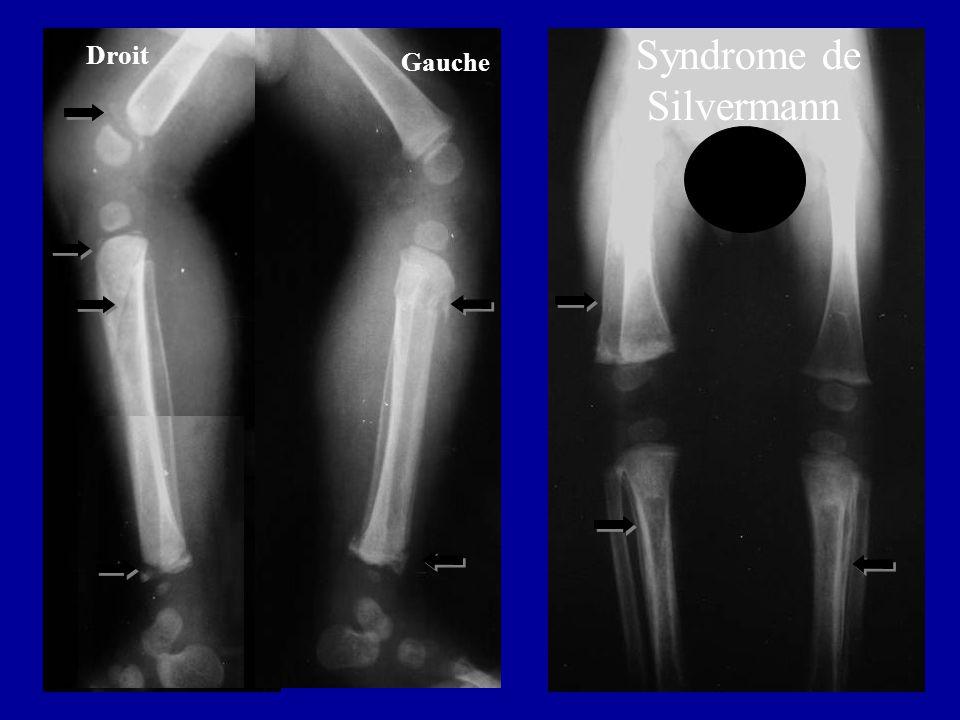 Syndrome de Silvermann Droit Gauche