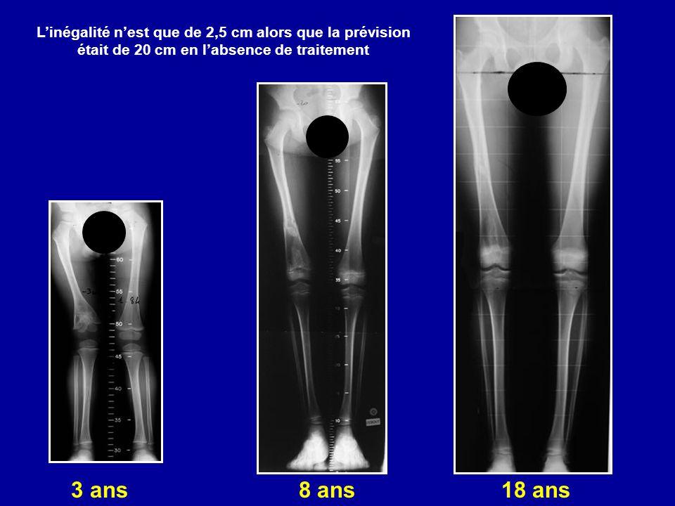 3 ans 8 ans 18 ans Linégalité nest que de 2,5 cm alors que la prévision était de 20 cm en labsence de traitement