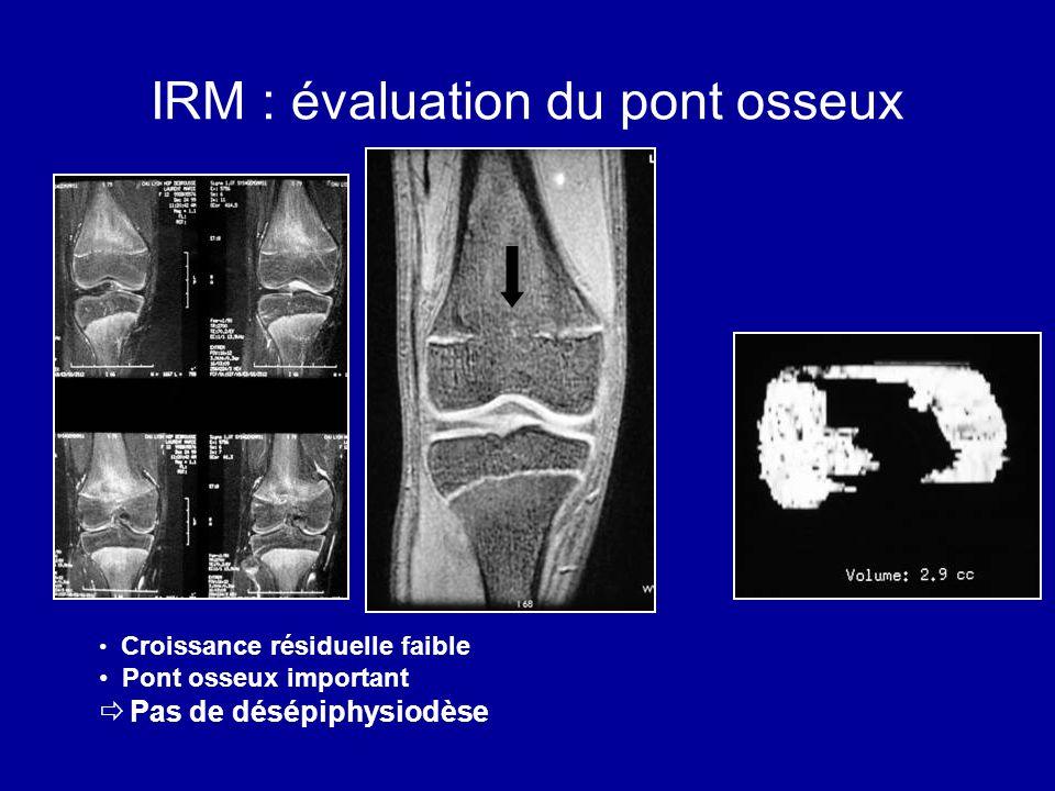 IRM : évaluation du pont osseux Croissance résiduelle faible Pont osseux important Pas de désépiphysiodèse