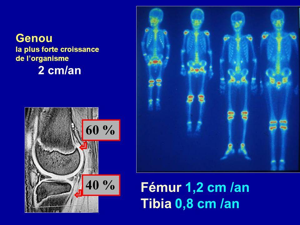 Genou la plus forte croissance de lorganisme 2 cm/an Fémur 1,2 cm /an Tibia 0,8 cm /an 60 % 40 %