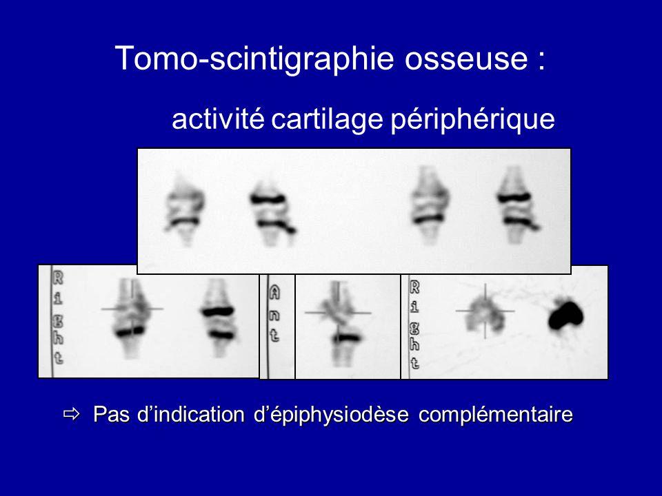 Tomo-scintigraphie osseuse : activité cartilage périphérique Pas dindication dépiphysiodèse complémentaire Pas dindication dépiphysiodèse complémentai