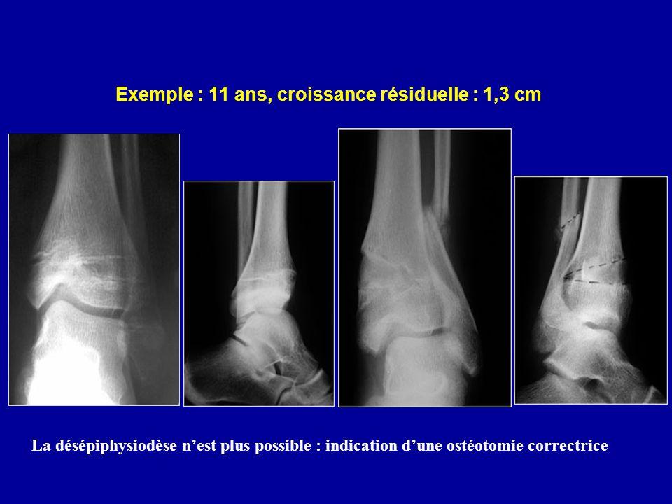 Exemple : 11 ans, croissance résiduelle : 1,3 cm La désépiphysiodèse nest plus possible : indication dune ostéotomie correctrice