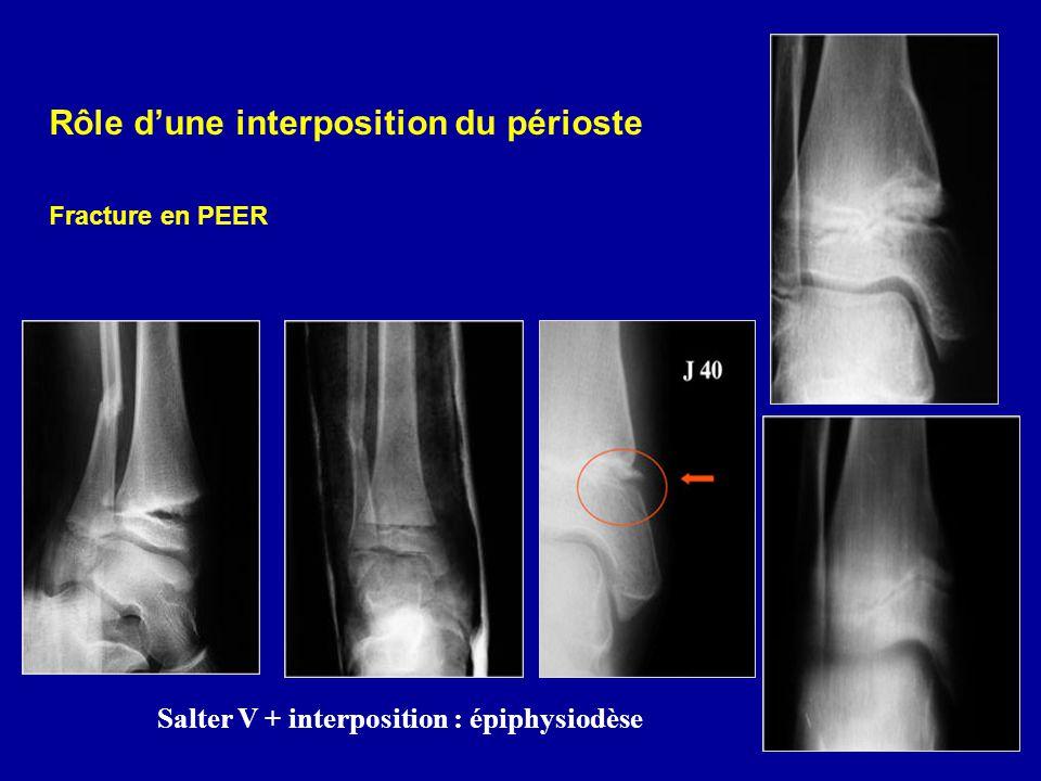 Rôle dune interposition du périoste Fracture en PEER Salter V + interposition : épiphysiodèse