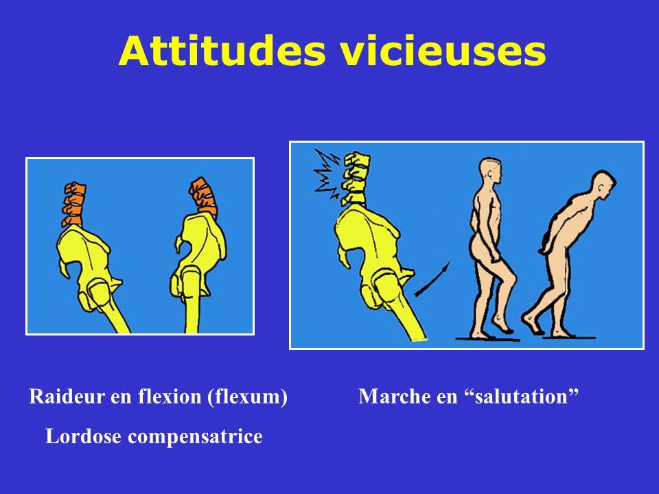 Raideur en flexion (flexum)Marche en salutation Lordose compensatrice Attitudes vicieuses