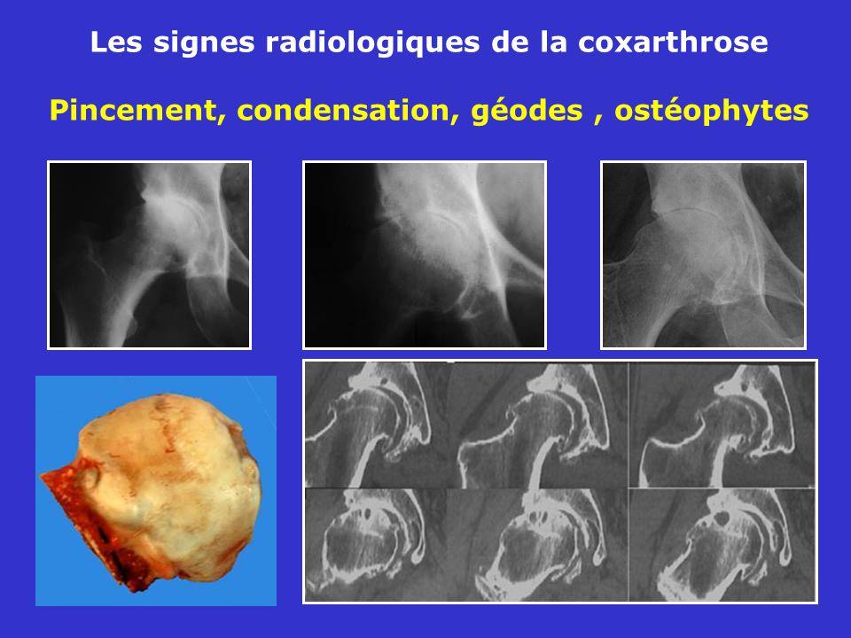 Les signes radiologiques de la coxarthrose Pincement, condensation, géodes, ostéophytes