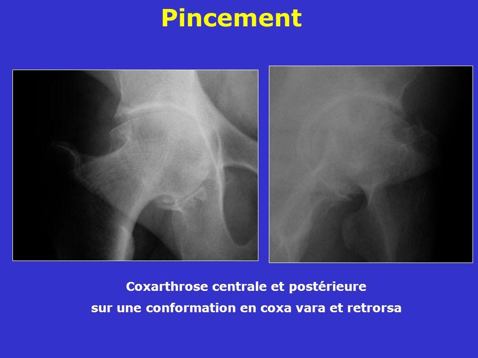 Coxarthrose centrale et postérieure sur une conformation en coxa vara et retrorsa Pincement