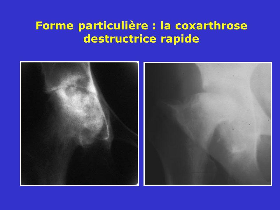 Forme particulière : la coxarthrose destructrice rapide