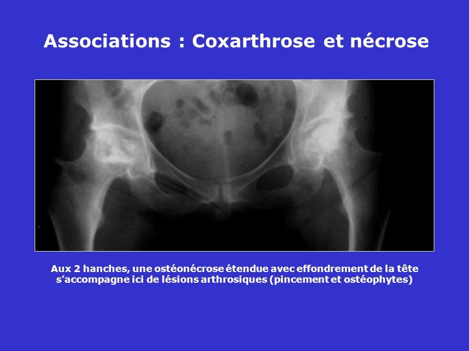 Associations : Coxarthrose et nécrose Aux 2 hanches, une ostéonécrose étendue avec effondrement de la tête saccompagne ici de lésions arthrosiques (pincement et ostéophytes)