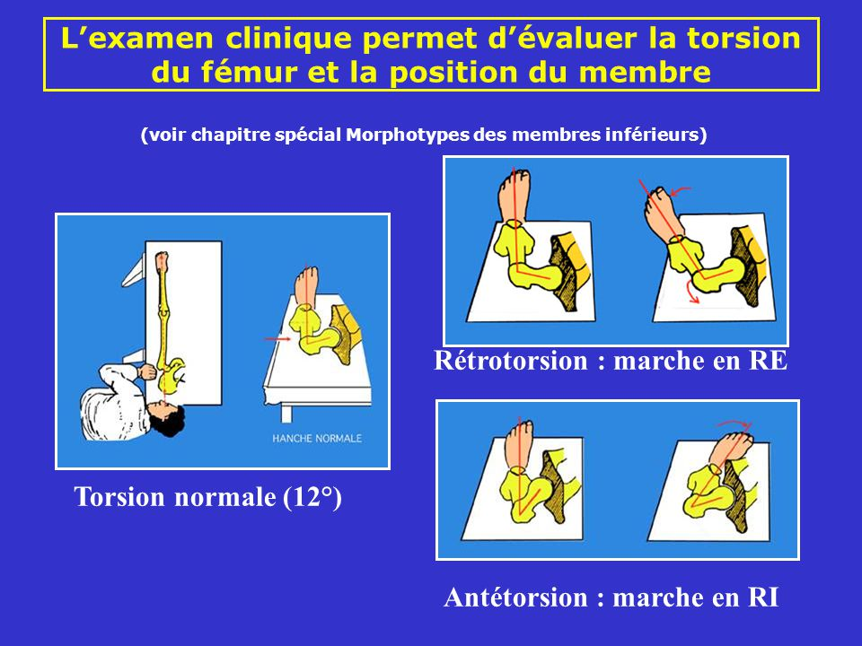Lexamen clinique permet dévaluer la torsion du fémur et la position du membre Rétrotorsion : marche en RE Antétorsion : marche en RI Torsion normale (