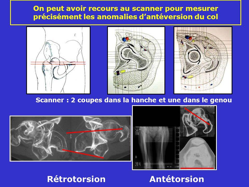 On peut avoir recours au scanner pour mesurer précisément les anomalies dantéversion du col Scanner : 2 coupes dans la hanche et une dans le genou Rétrotorsion Antétorsion