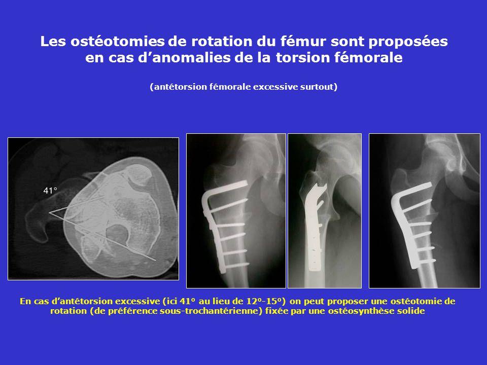 Les ostéotomies de rotation du fémur sont proposées en cas danomalies de la torsion fémorale (antétorsion fémorale excessive surtout) En cas dantétorsion excessive (ici 41° au lieu de 12°-15°) on peut proposer une ostéotomie de rotation (de préférence sous-trochantérienne) fixée par une ostéosynthèse solide