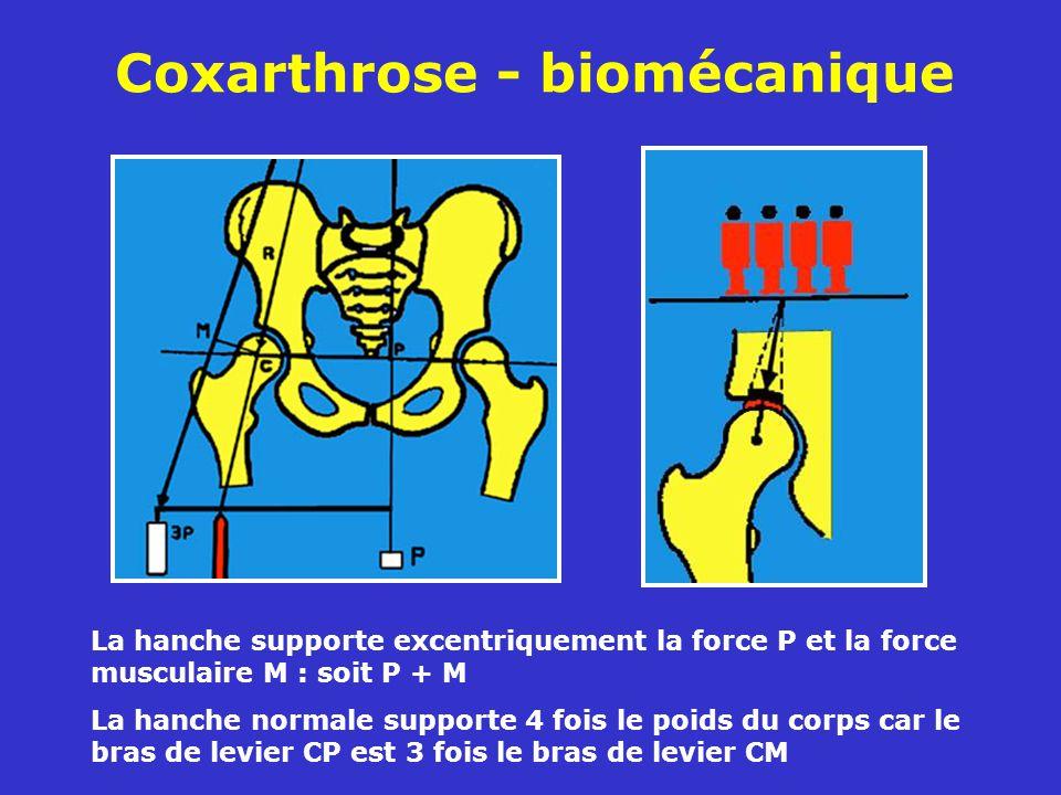 Coxarthrose - biomécanique La hanche supporte excentriquement la force P et la force musculaire M : soit P + M La hanche normale supporte 4 fois le poids du corps car le bras de levier CP est 3 fois le bras de levier CM