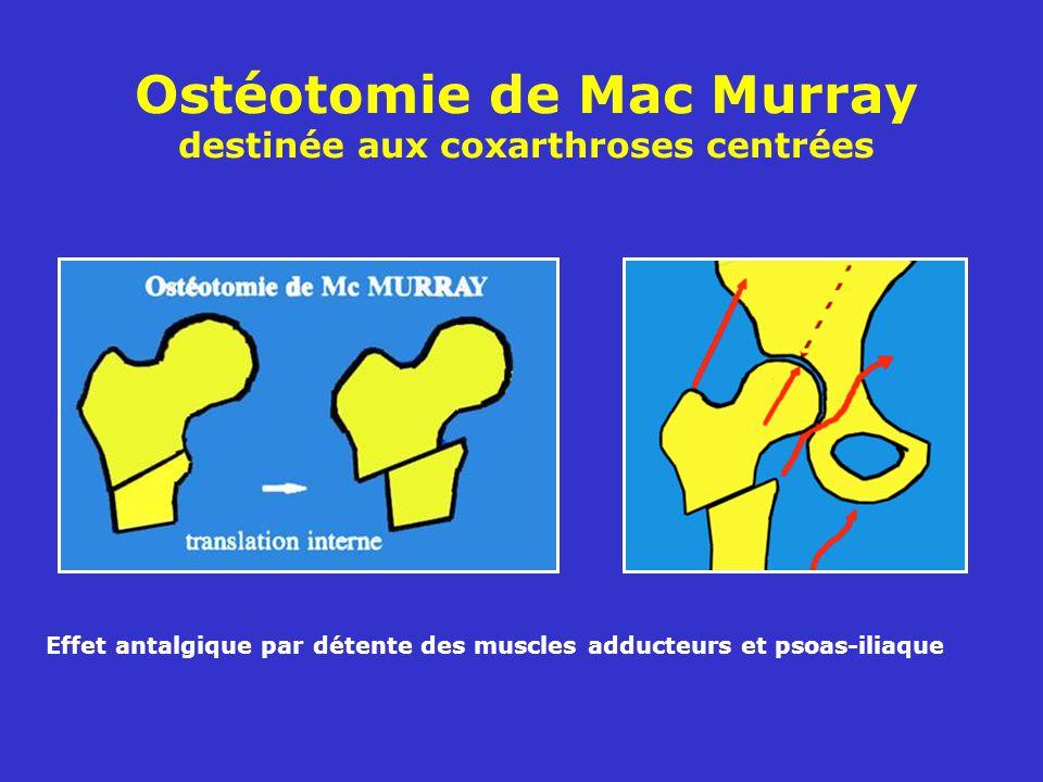 Ostéotomie de Mac Murray destinée aux coxarthroses centrées Effet antalgique par détente des muscles adducteurs et psoas-iliaque