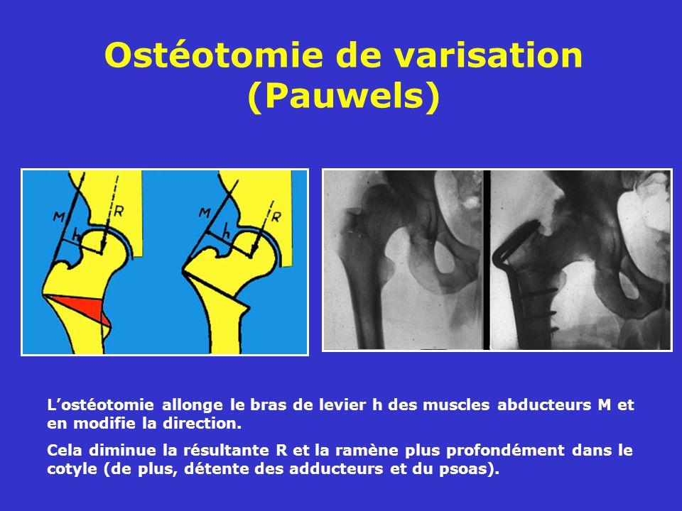Ostéotomie de varisation (Pauwels) Lostéotomie allonge le bras de levier h des muscles abducteurs M et en modifie la direction.