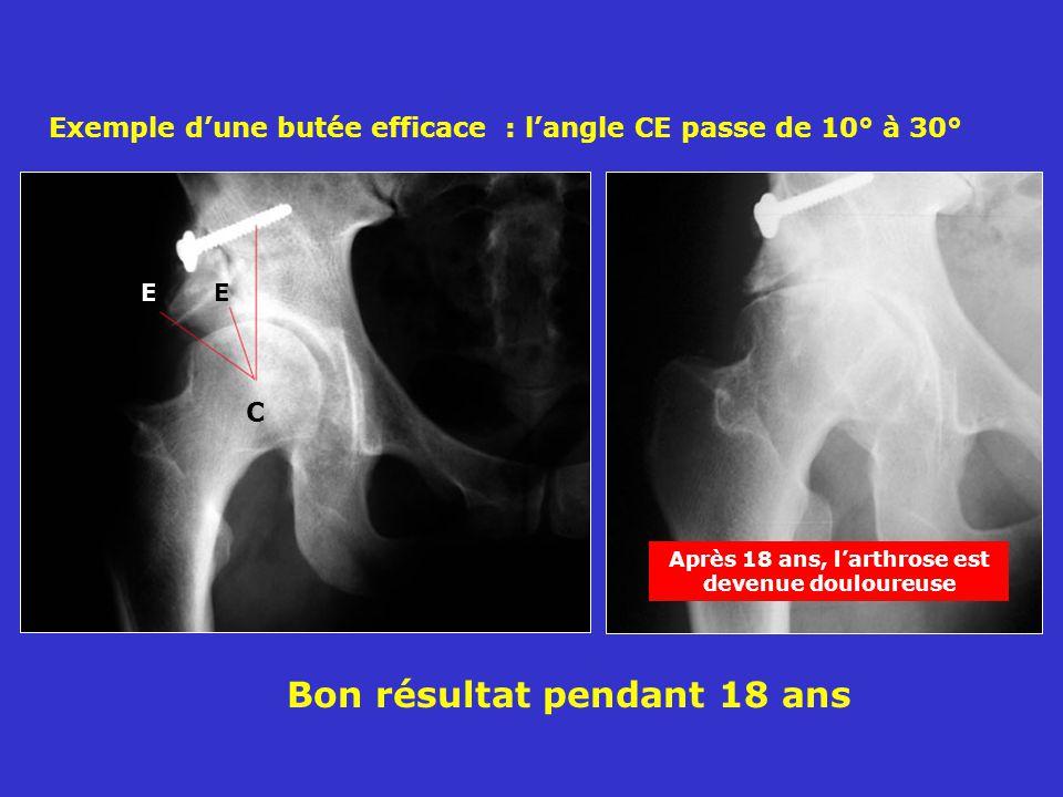 Bon résultat pendant 18 ans Exemple dune butée efficace : langle CE passe de 10° à 30° C E Après 18 ans, larthrose est devenue douloureuse
