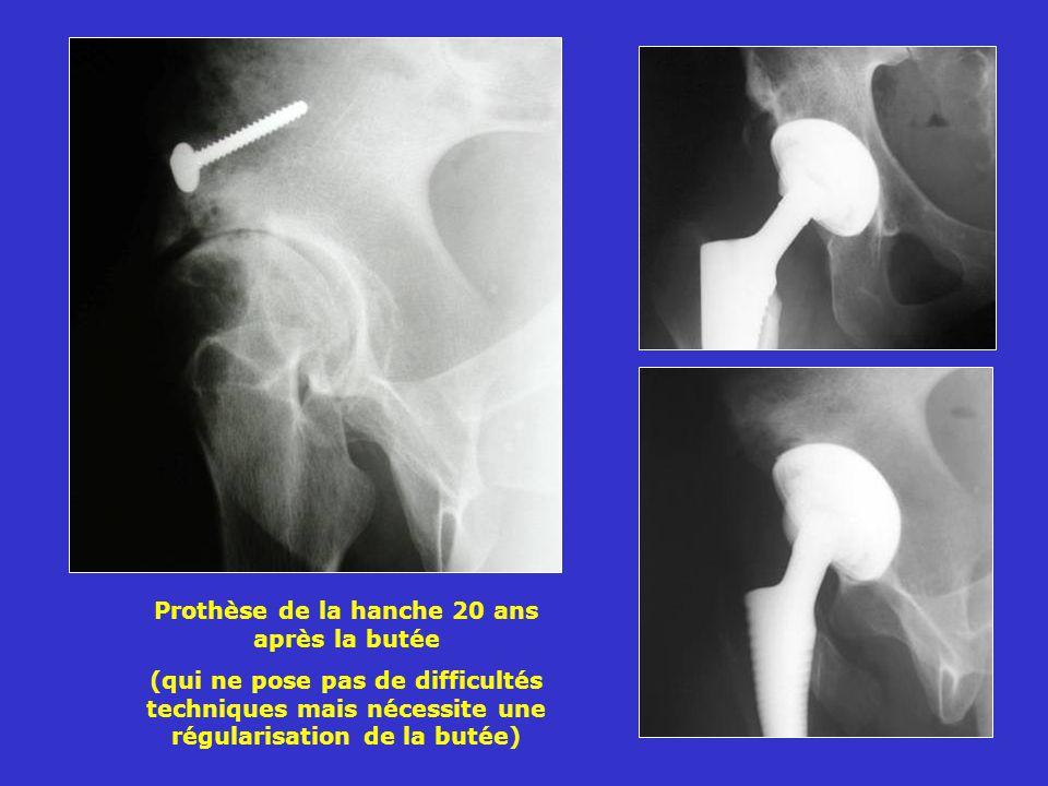 Prothèse de la hanche 20 ans après la butée (qui ne pose pas de difficultés techniques mais nécessite une régularisation de la butée)