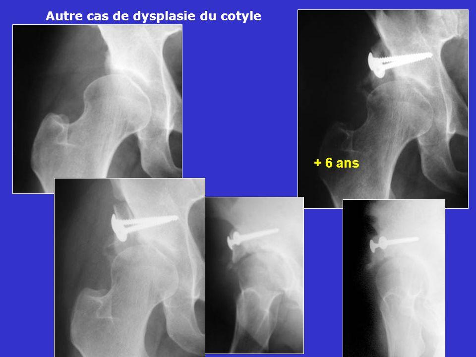 + 6 ans Autre cas de dysplasie du cotyle