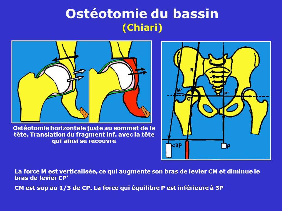 Ostéotomie du bassin (Chiari) Ostéotomie horizontale juste au sommet de la tête.