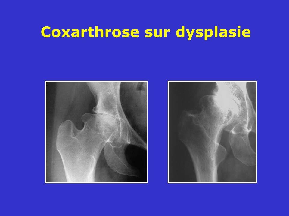 Coxarthrose sur dysplasie