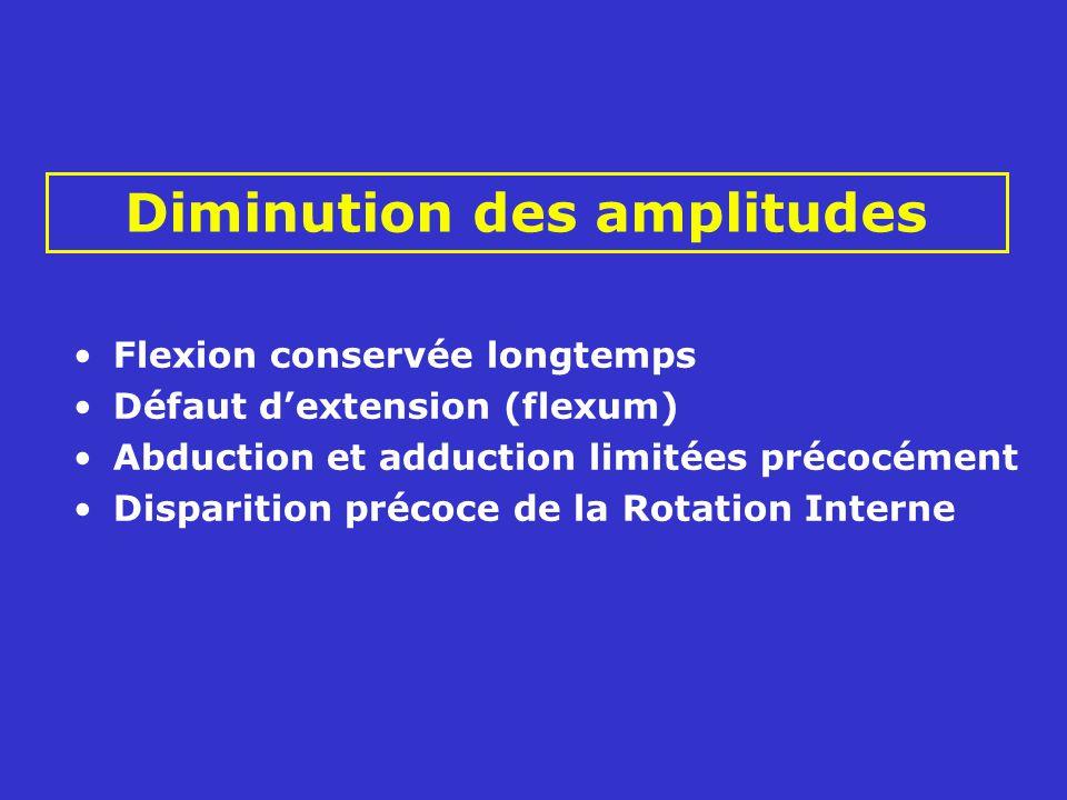 Flexion conservée longtemps Défaut dextension (flexum) Abduction et adduction limitées précocément Disparition précoce de la Rotation Interne Diminution des amplitudes
