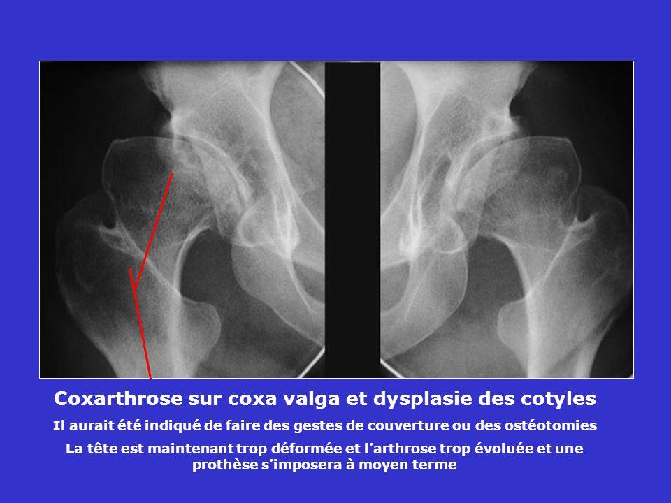 Coxarthrose sur coxa valga et dysplasie des cotyles Il aurait été indiqué de faire des gestes de couverture ou des ostéotomies La tête est maintenant trop déformée et larthrose trop évoluée et une prothèse simposera à moyen terme