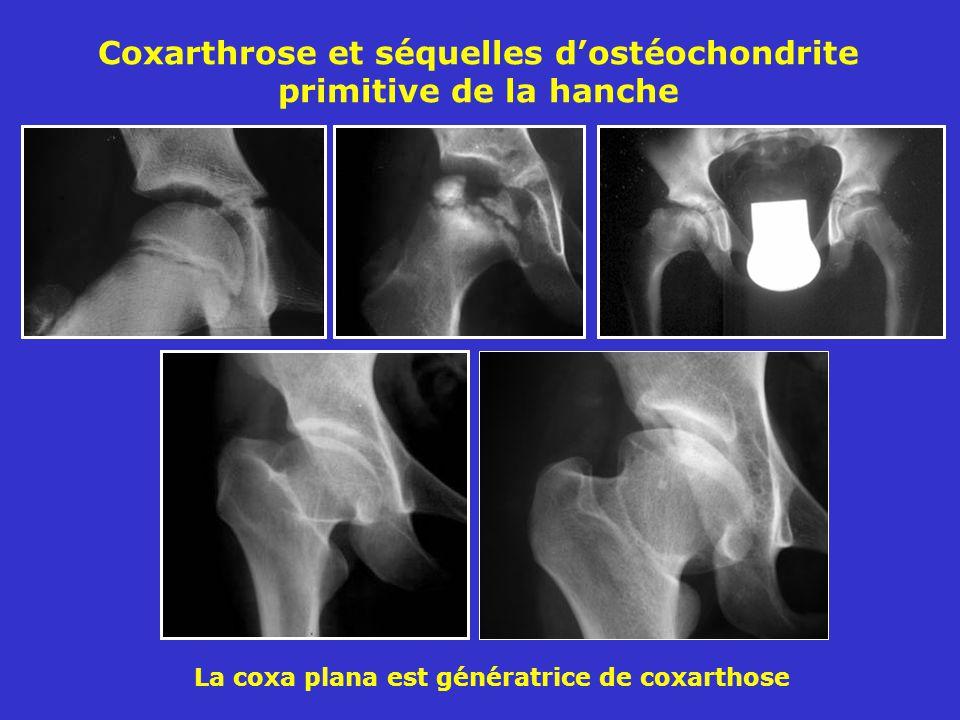 Coxarthrose et séquelles dostéochondrite primitive de la hanche La coxa plana est génératrice de coxarthose