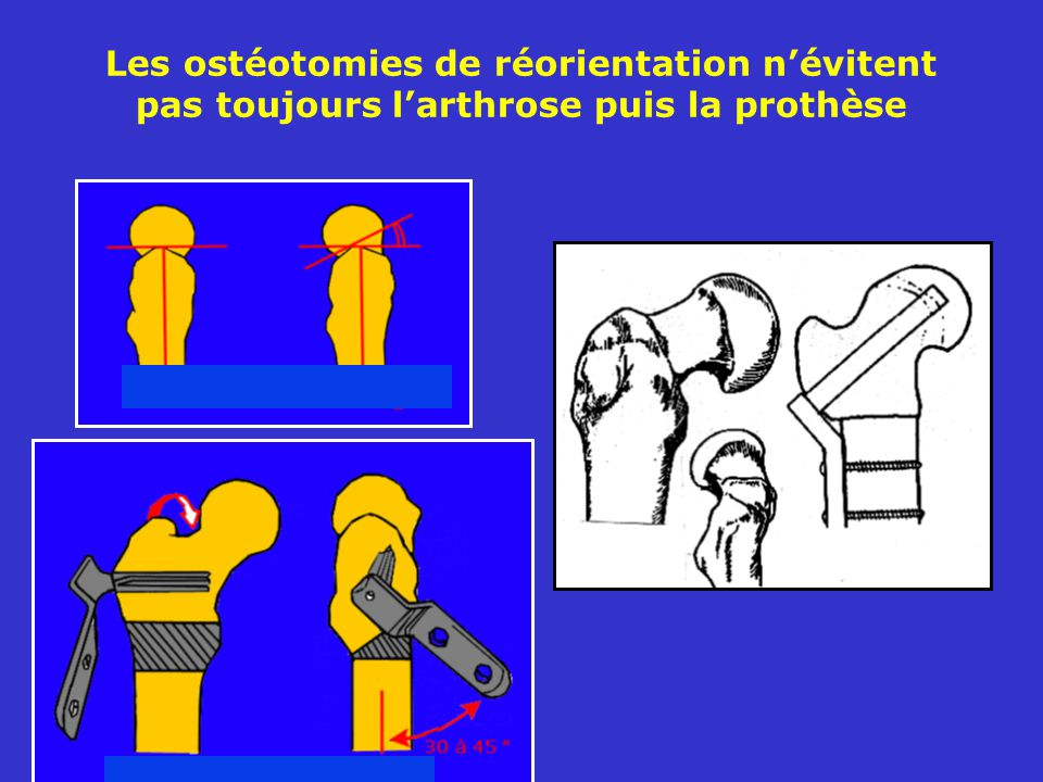 Les ostéotomies de réorientation névitent pas toujours larthrose puis la prothèse