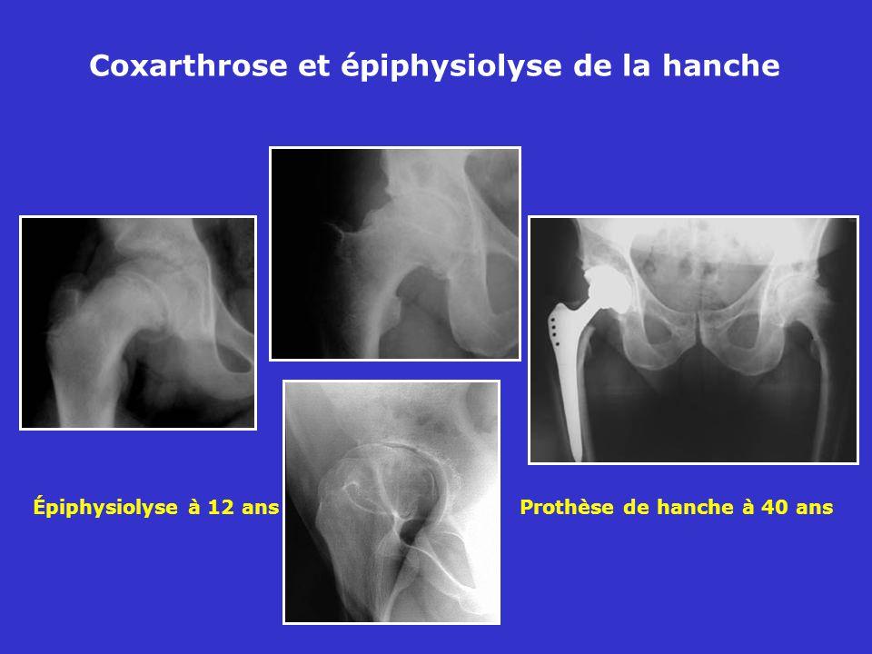 Épiphysiolyse à 12 ans Prothèse de hanche à 40 ans Coxarthrose et épiphysiolyse de la hanche