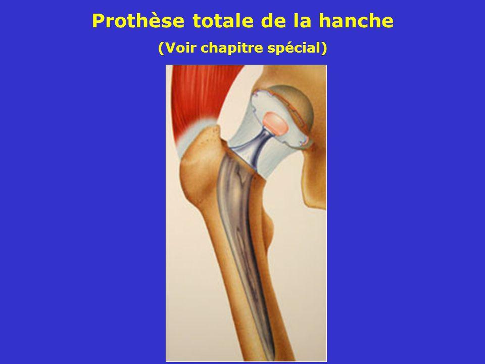 Prothèse totale de la hanche (Voir chapitre spécial)