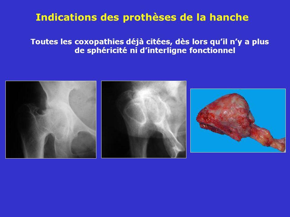 Indications des prothèses de la hanche Toutes les coxopathies déjà citées, dès lors quil ny a plus de sphéricité ni dinterligne fonctionnel