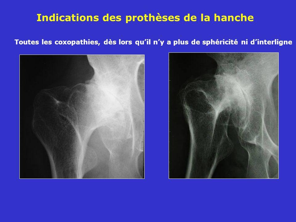 Indications des prothèses de la hanche Toutes les coxopathies, dès lors quil ny a plus de sphéricité ni dinterligne
