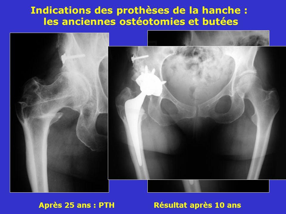 Après 25 ans : PTH Résultat après 10 ans Indications des prothèses de la hanche : les anciennes ostéotomies et butées