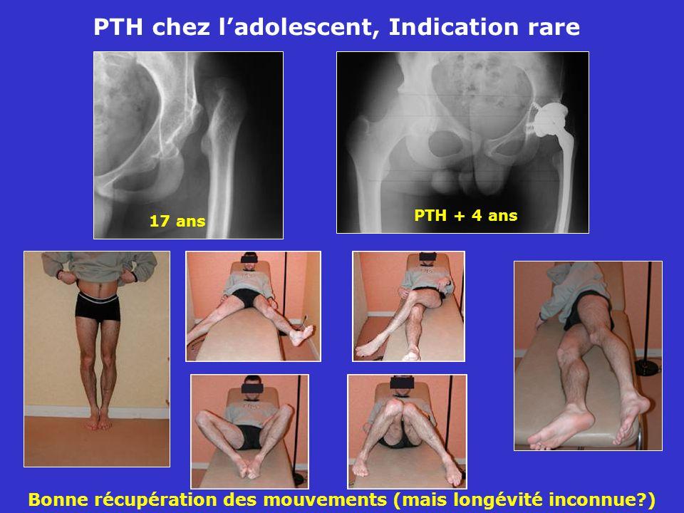 PTH chez ladolescent, Indication rare 17 ans PTH + 4 ans Bonne récupération des mouvements (mais longévité inconnue?)